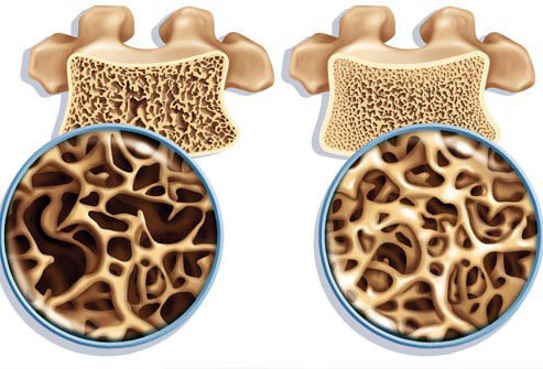 Watch The New Osteoporosis Risk video
