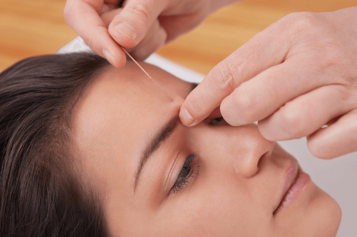 Acupuncture for Addictions