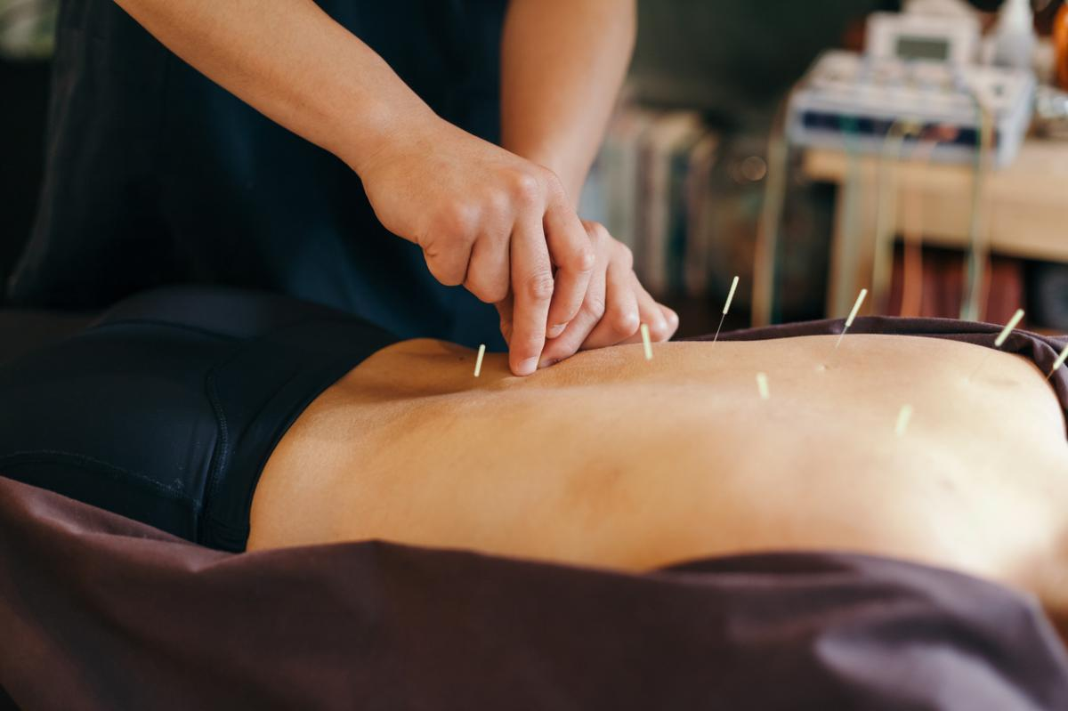 acupuncture as an alternative to opioids