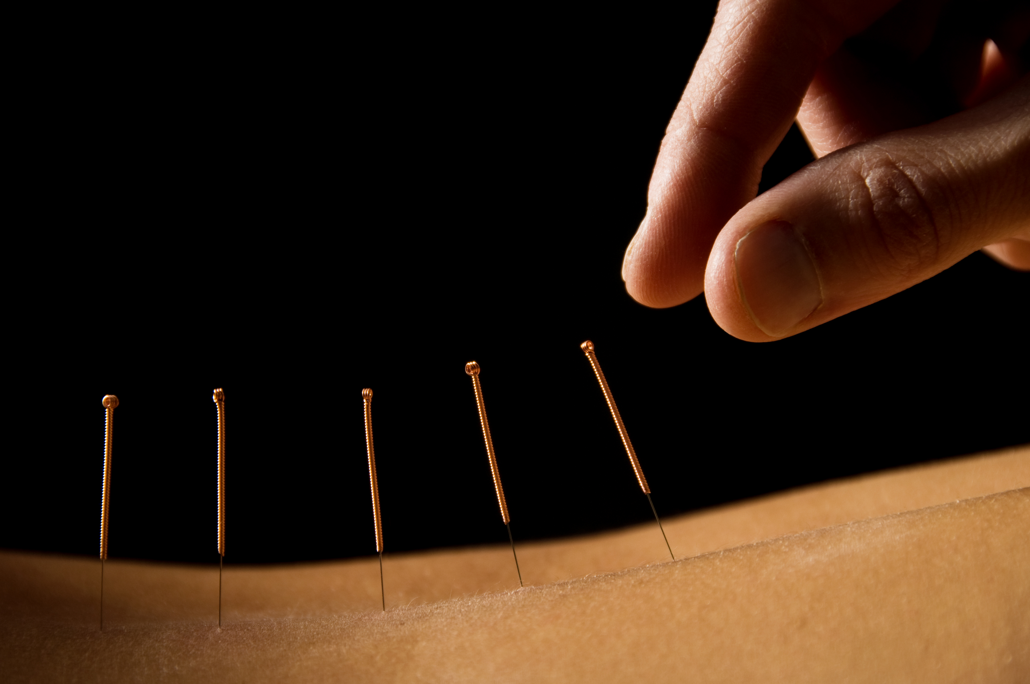 The Science of Acupuncture Safety: Risks, Harms, and Ancient Goodness
