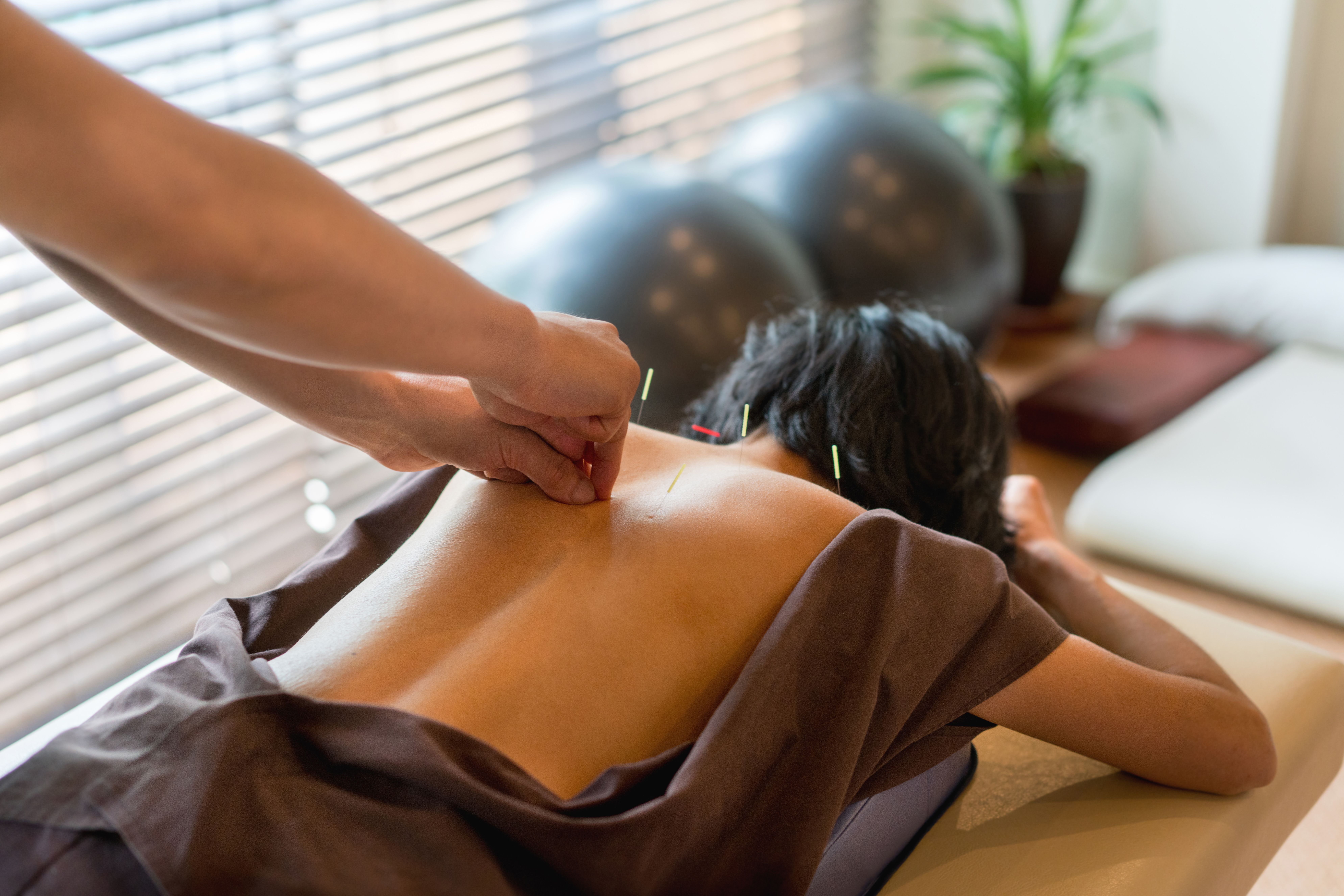 Discover the Benefits of Electro-Acupuncture!