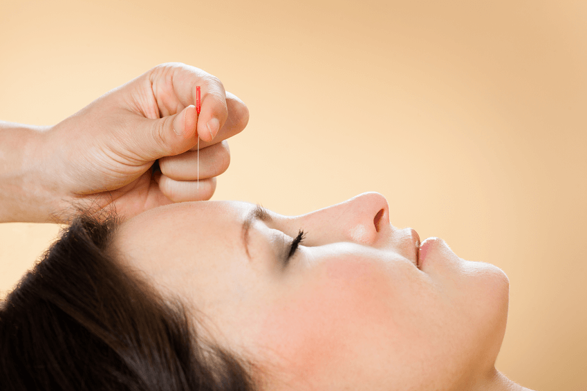Top Acupuncture Myths