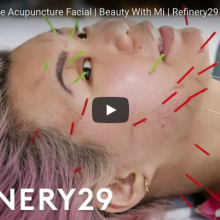 I Tried Facial Acupuncture & It Cleared My Acne