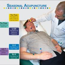 "Dr. Javaherian performs a form of seasonal acupuncture on PCOM Alumnus and Student Advisor Jason Rogers. All these points work together to ""release exterior,"" as it's known in Traditional Chinese Medicine. According to Dr. Javaherian, ""All these points fight pathogens so they can't invade the body."""