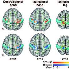 Acupuncture Shown to Rewire the Brain in New Carpal Tunnel Study