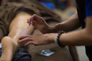 acupuncture-student-learning