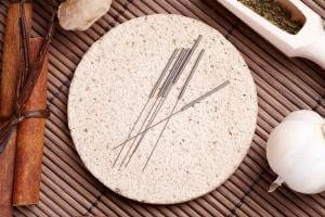 Chinese…Japanese…Is Acupuncture All the Same?