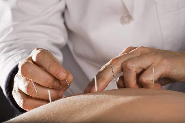 Acupuncture Can Help With Weight Loss