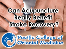 Can Acupuncture Really Benefit Stroke Recovery? - Pacific
