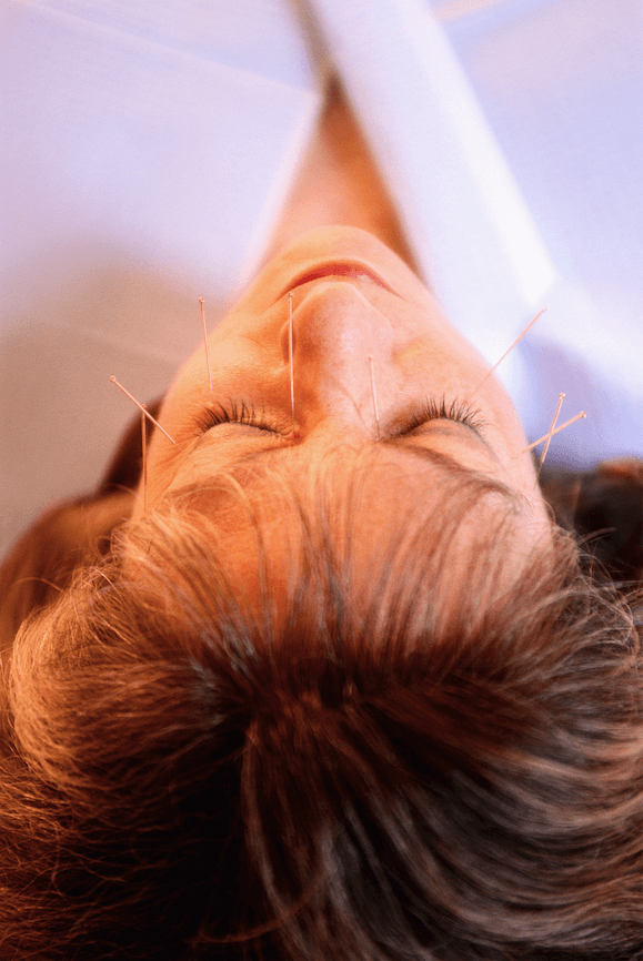 Facial Acupuncture: Natural Age-Defying