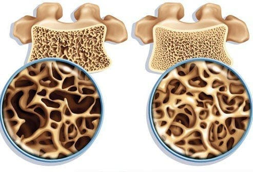TCM Treatments for Osteoporosis