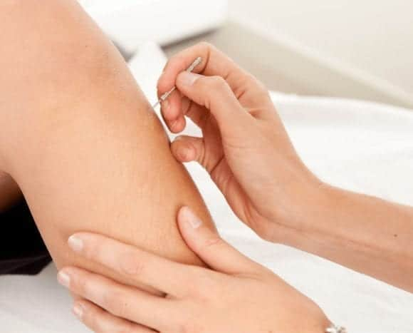 Restless Leg Syndrome and Traditional Chinese Medicine
