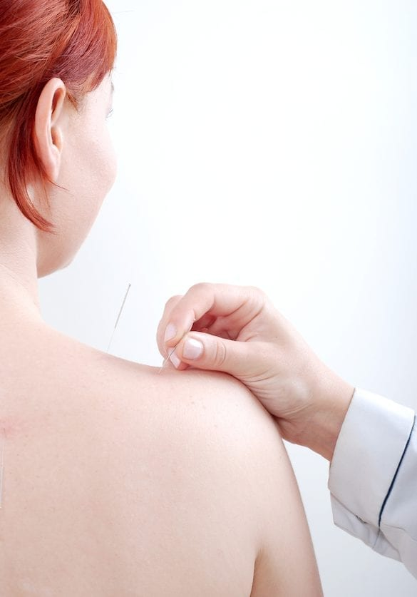 The Top Reasons People Don't Get Acupuncture (and Why They Should)