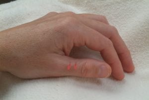 PHOTO: This two-point unit is located on the dorsal surface of the thumb, on the ulnar line of the proximal phalange, 0.3 cun lateral to the midline and halfway between the dorsal midline and the junction of red and white skin.