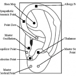 A diagram of ear acupuncture points