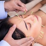 Woman getting acupuncture in her face.